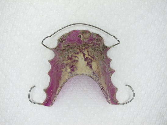 How To Clean a Crusty Retainer (Invisalign or Orthodontic)