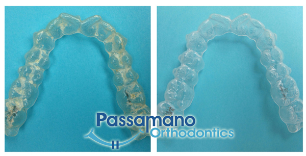 How-To-Clean-Invisalign-Tra