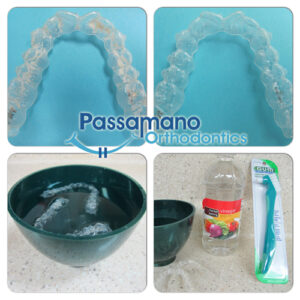 How-to-Clean-Invisalign-Col