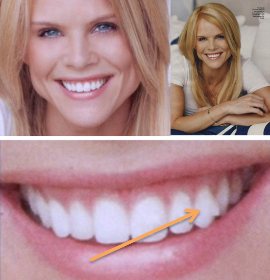 Elin Nordegan Invisalign Attachment