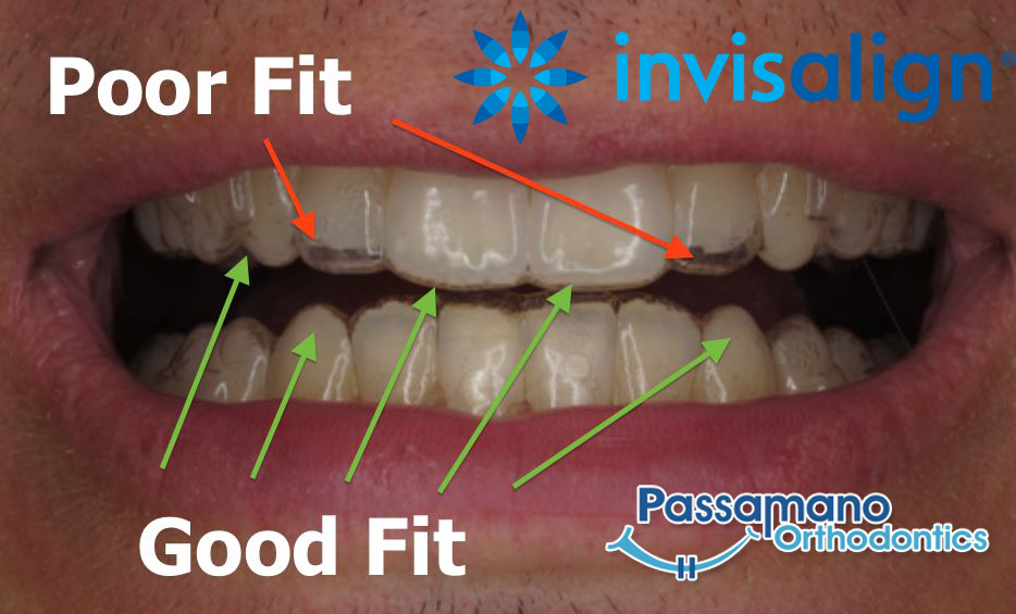 How to Care for Your Invisalign Trays?
