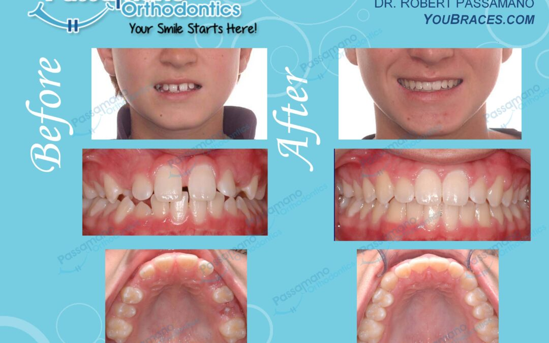 Braces to Close Spaces and Create a Great Smile