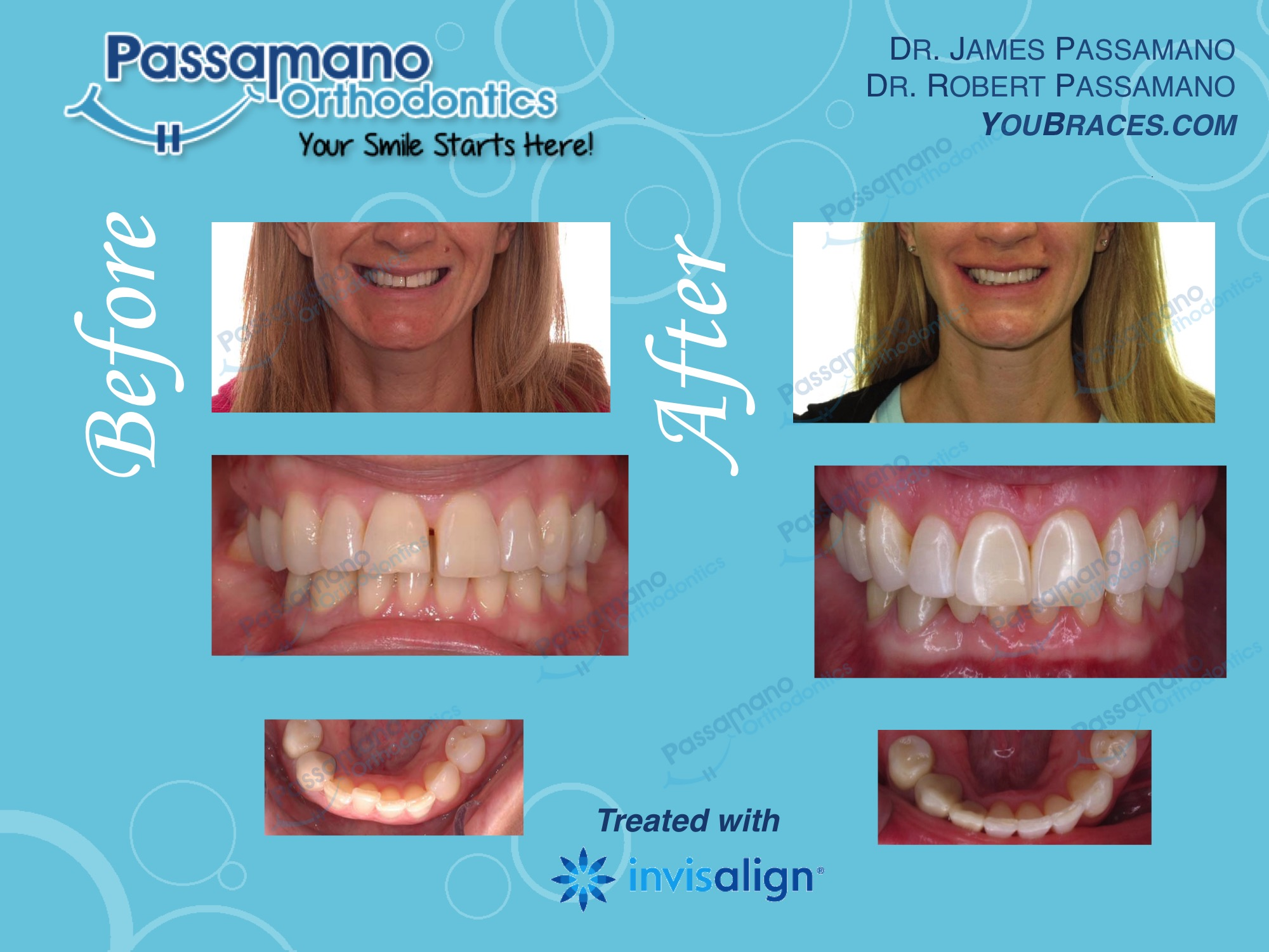 Adult with Diastema; Closed with Invisalign