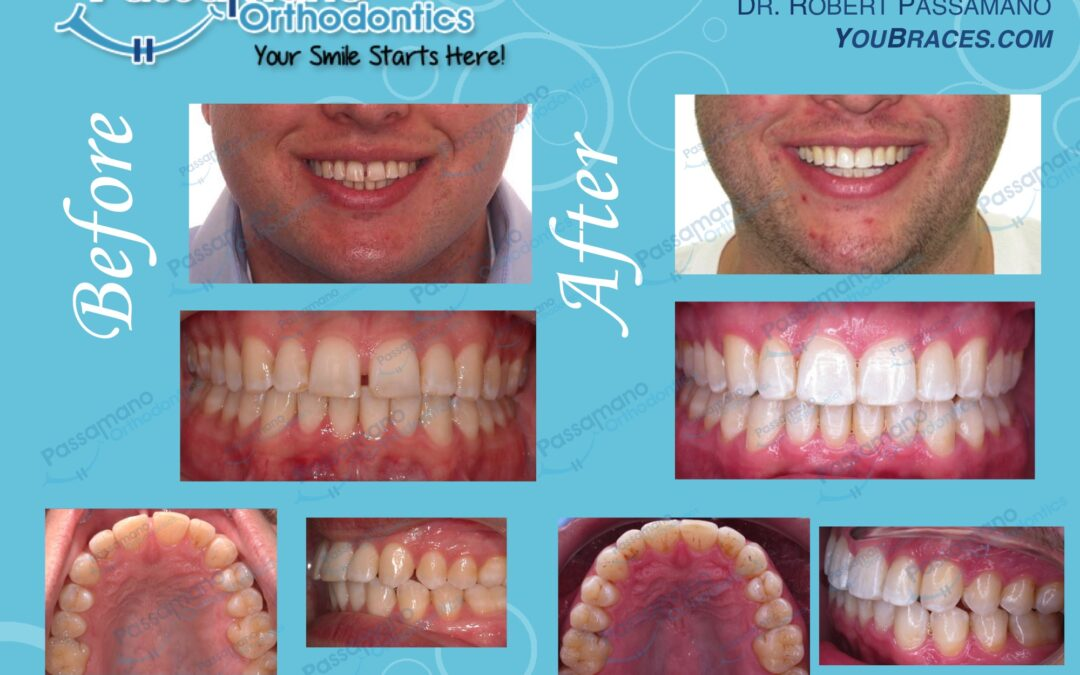 Close My Gap with Invisalign in 20 Months