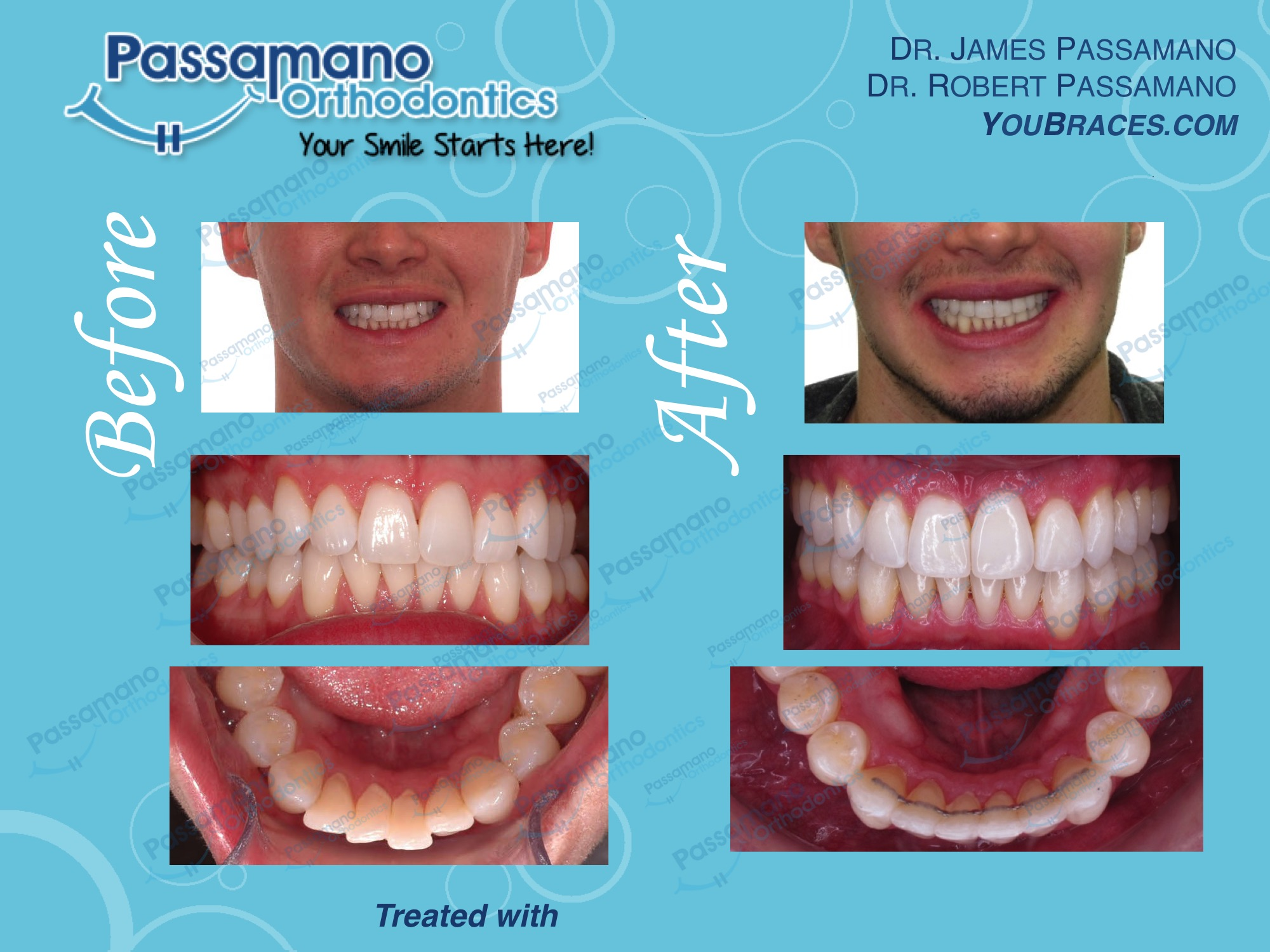 Minor Crowding with Invisalign in 12 Months!
