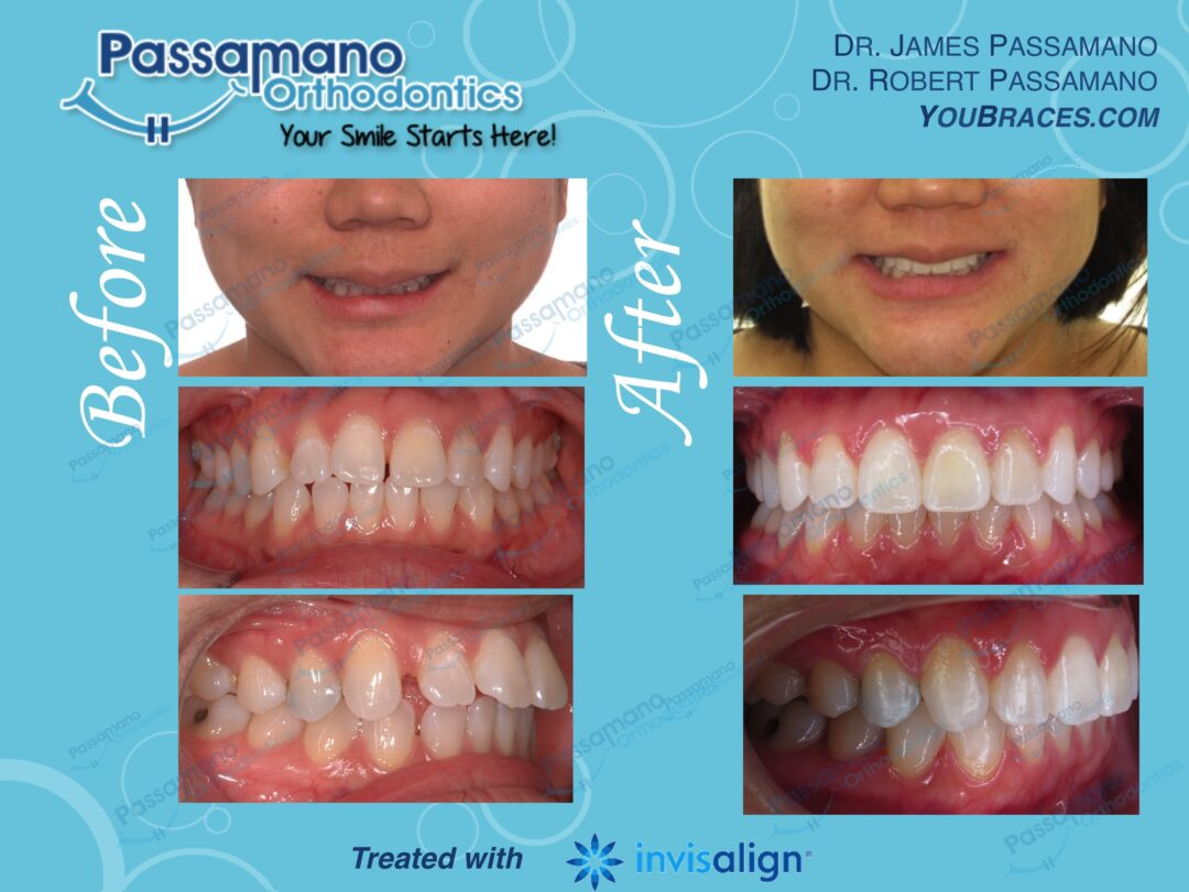 Flared Upper Incisors Fixed with Invisalign only No Extraction!