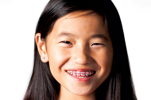 Top 7 Reasons Why Your Child Needs Braces