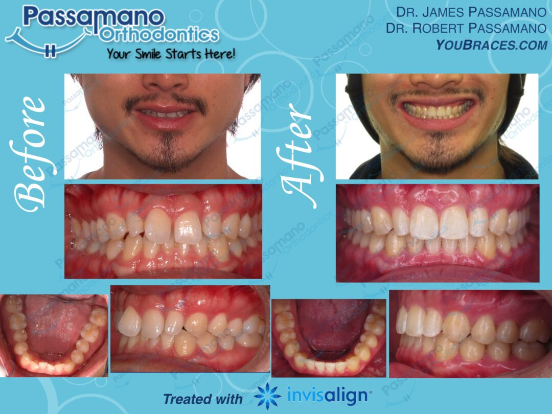 Small Laterals No Problem!  Fixed with Invisalign.