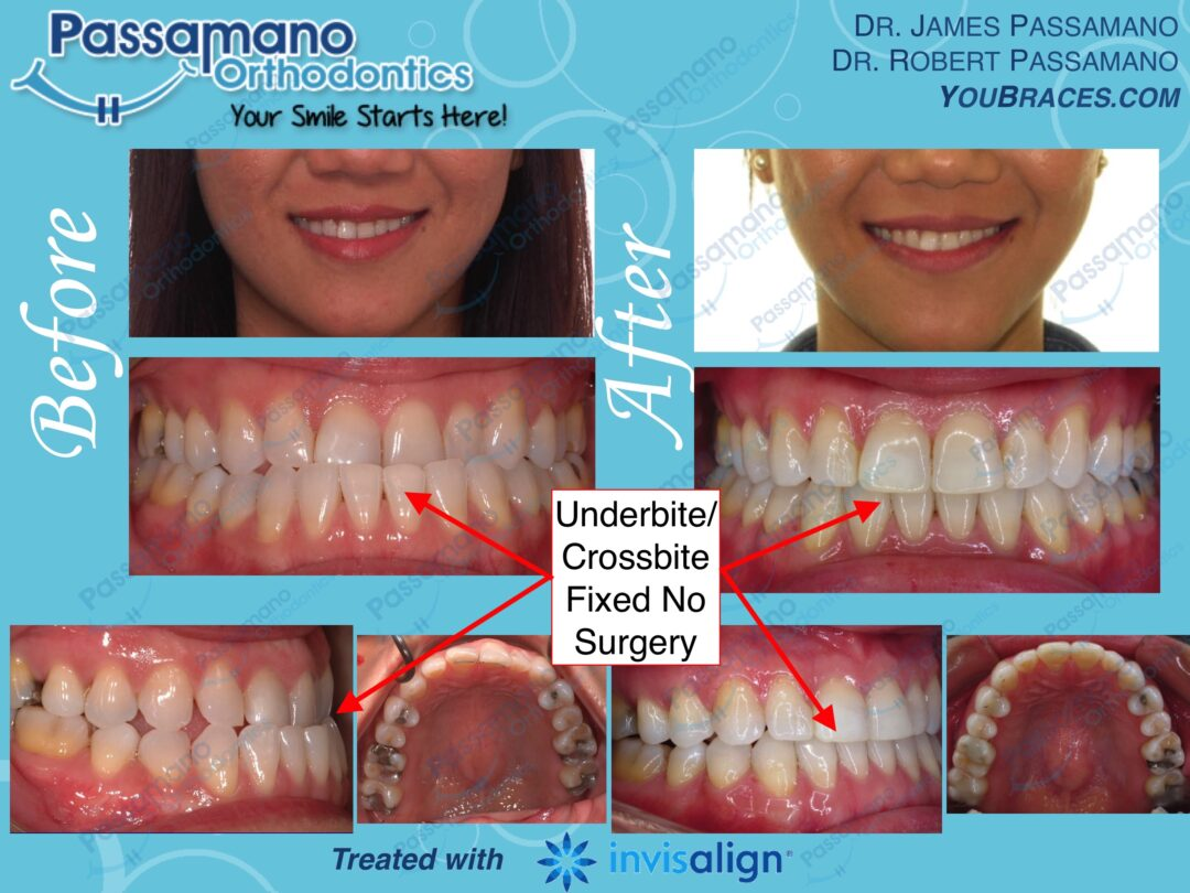 Underbite Fixed using Invisalign without Surgery