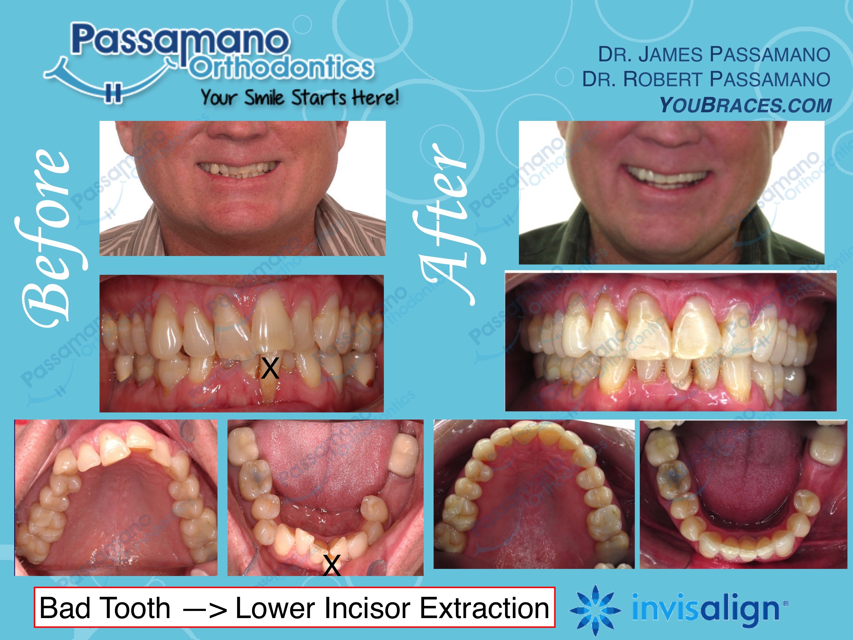 Lower Incisor Tooth Extraction with Invisalign Only