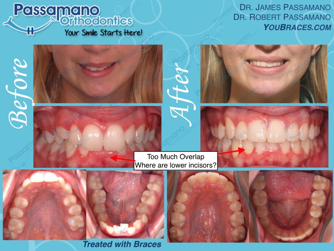 Deep Overbite Corrected with Braces Only
