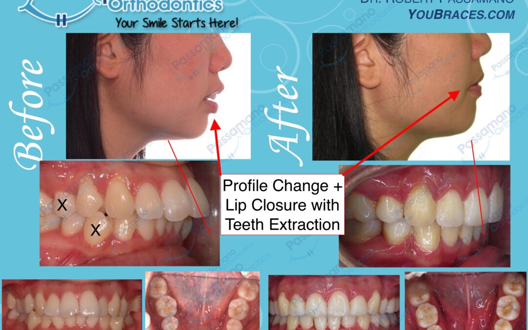 Extraction 4 Premolars Asian Female with Excellent Result