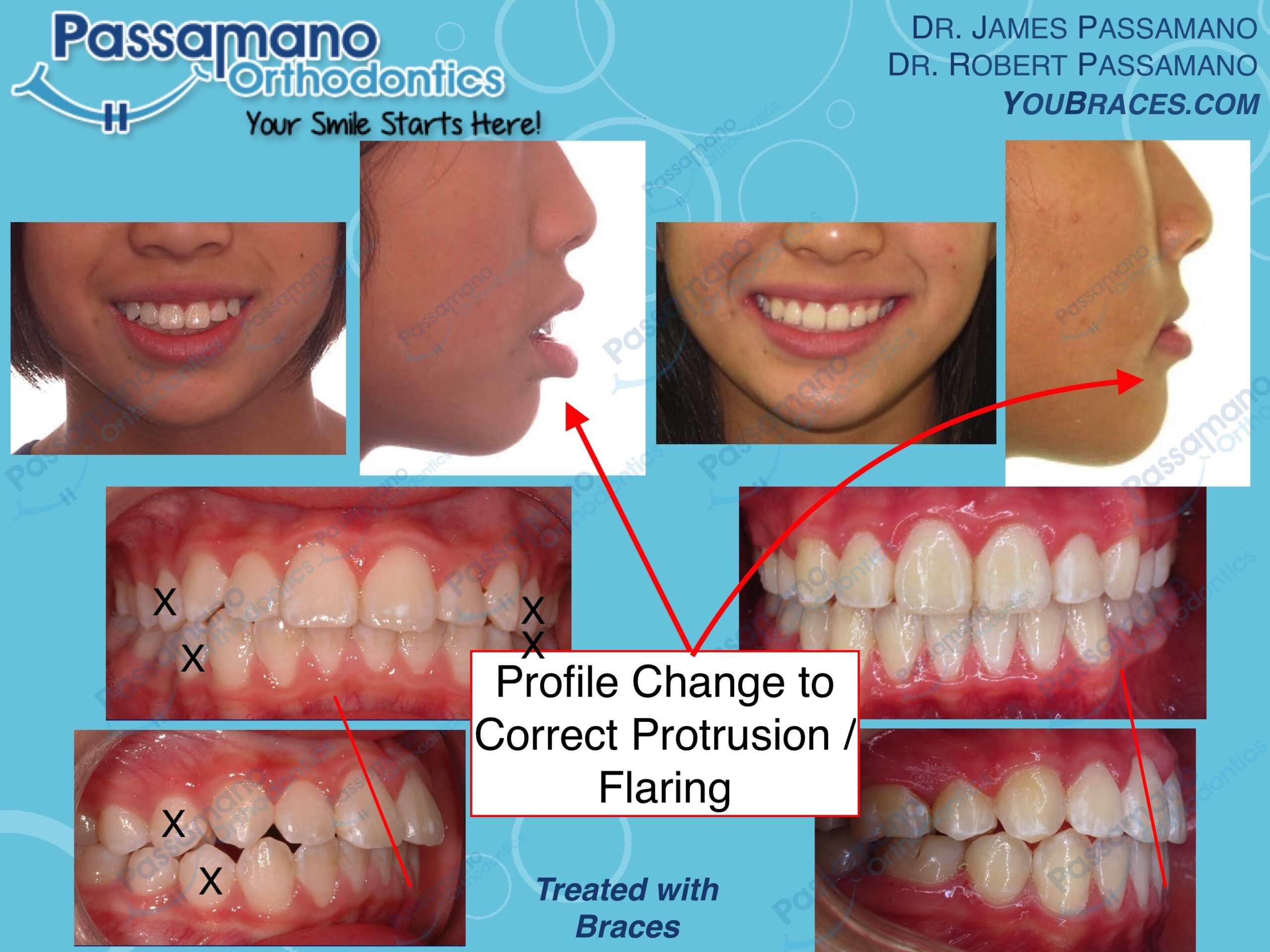 4 Premolar Teeth Extracted For Amazing Profile And Lip Changes A Passamano Orthodontics