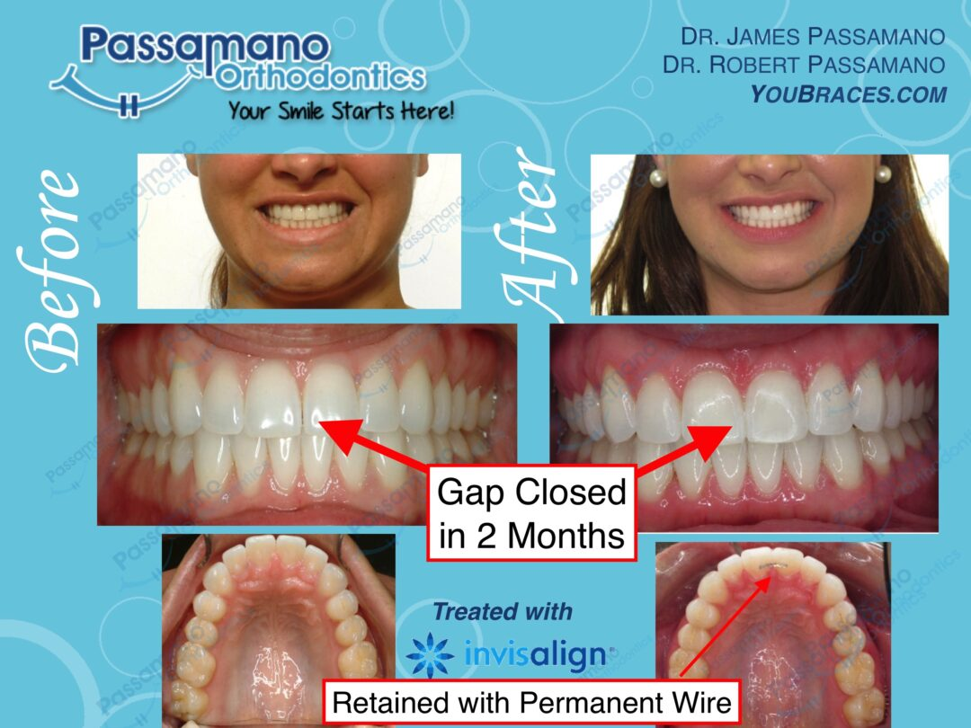 Invisalign Express – 2 Months Only to Close Front Gap