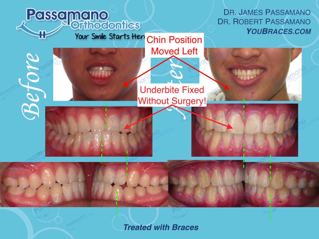 Underbite Class 3 Fixed with Braces Only No Surgery Amazing Finish