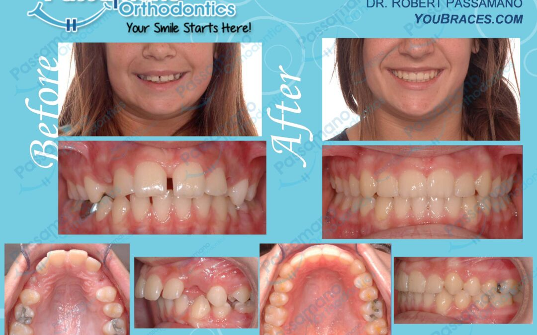 Diastema Closed with Braces on Teenage Female