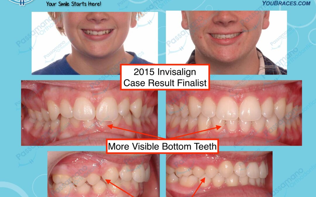 Invisalign Teenage Male Class 2 Correction