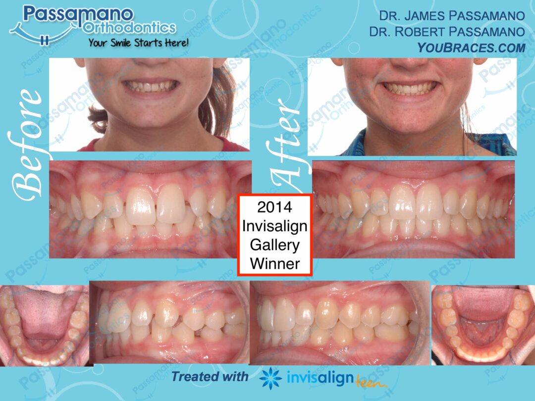 Teen Female Class 2 Invisalign Nationally Recognized Winner