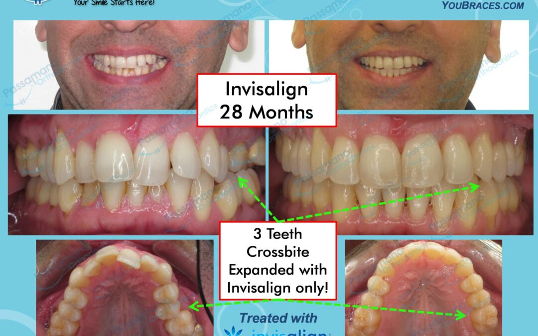 Invisalign Adult Crossbite and Great Result