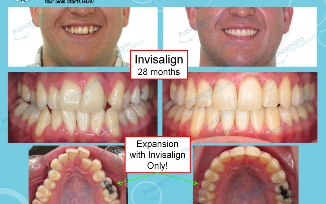 Invisalign Expansion Only 28 Years Old