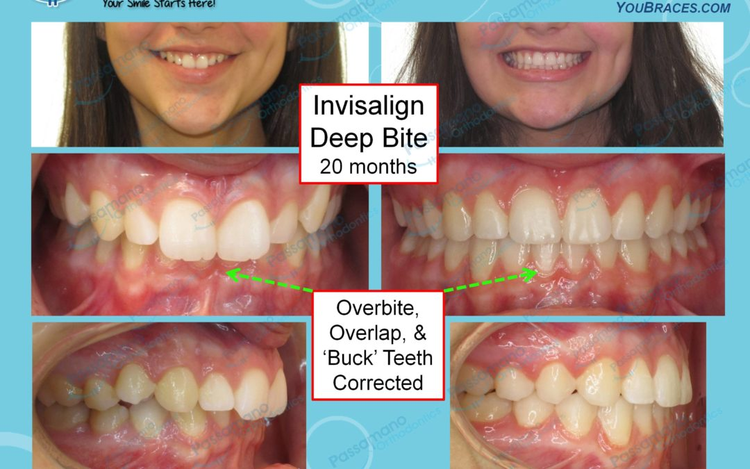 Invisalign Deep Bite and Class 2 Correction Invisalign Teeth